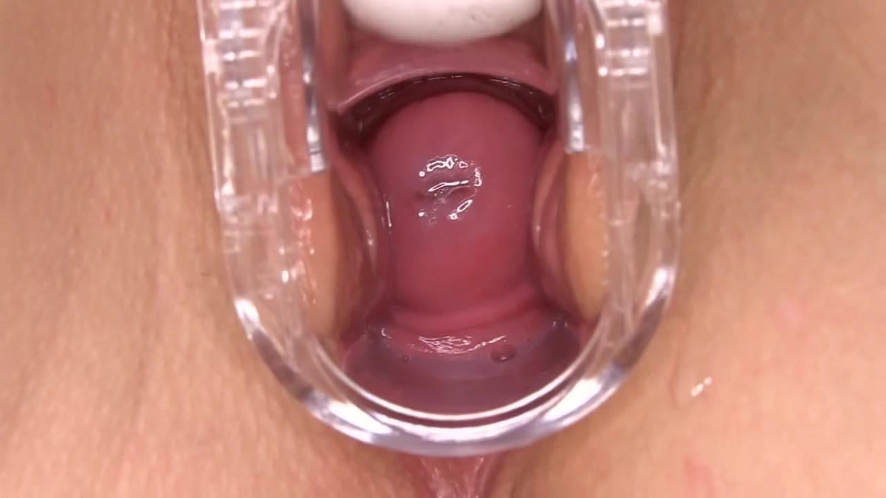Cervix squirt